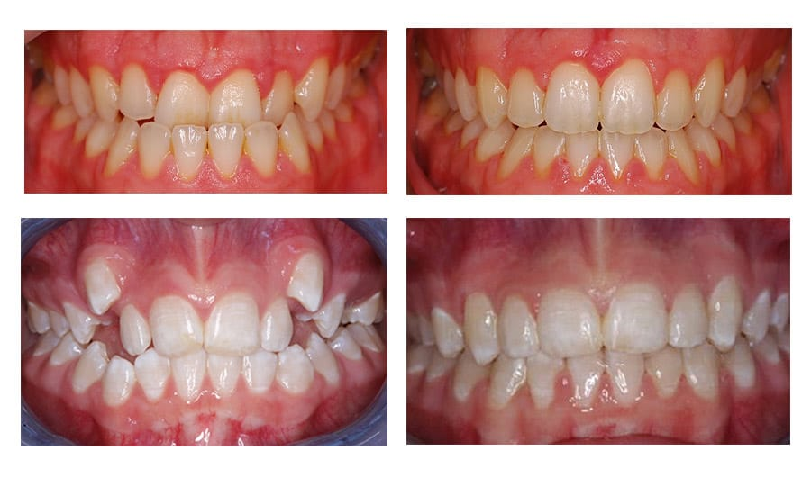 Specials - Somi Dental Group