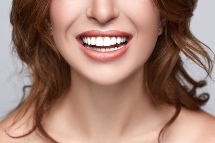 patient with white teeth after teeth cleaning in boca raton